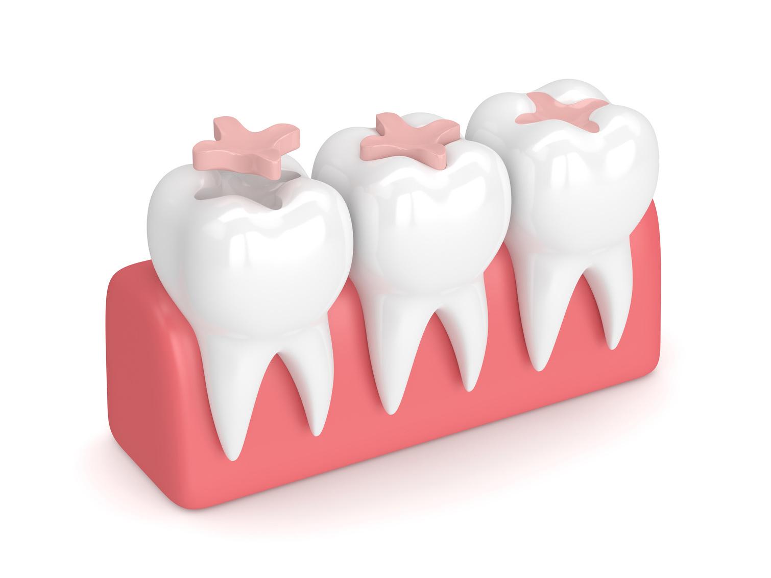 Biss und Kaufunktion sollen wiederhergestellt und verlorengegangene Zahnsubstanz wieder aufgebaut werden.