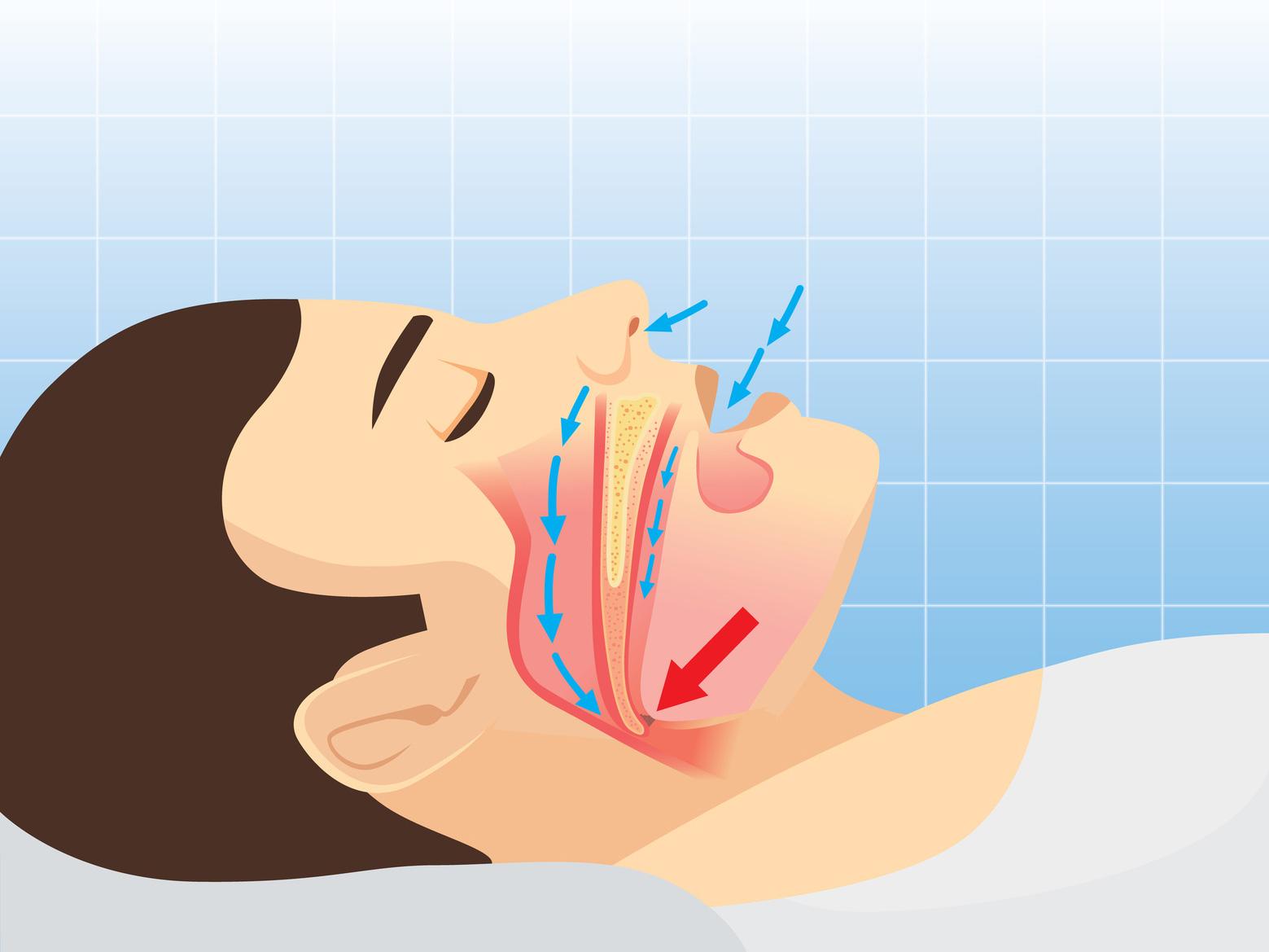 Eine Schnarchtherapie ist wichtig, denn Schnarchen kann die Gesundheit gefährden