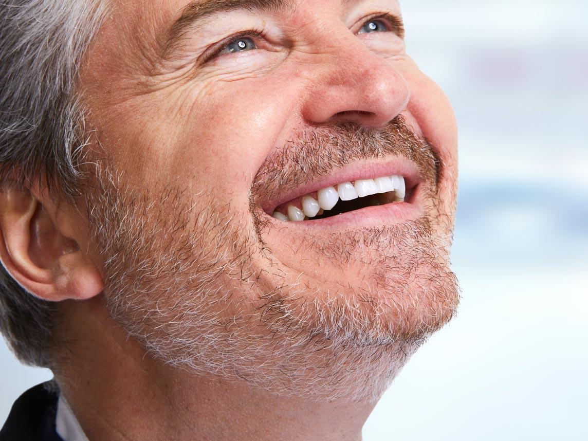 Die Entfernung von Zahnbelägen ist wichtig, um Parodontitis zu vermeiden
