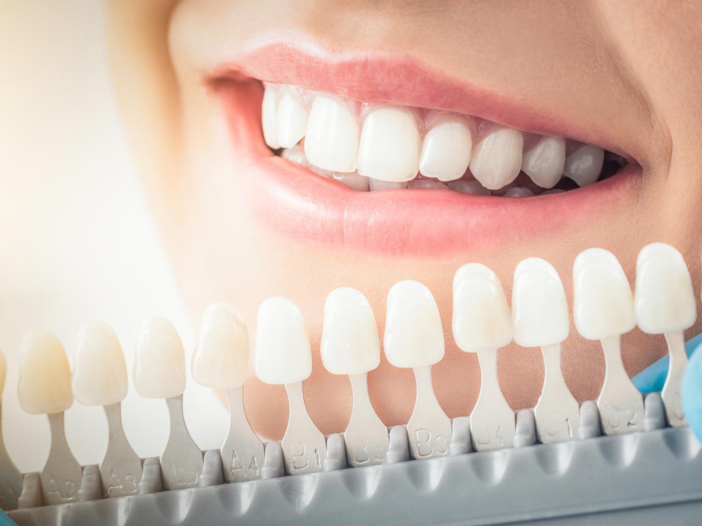 Zahnverfärbungen nach einer Wurzelbehandlung können durch ein inneres Bleaching korrigiert werden.