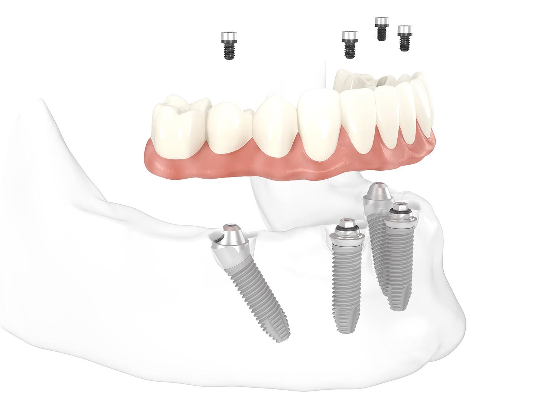 all-on-4™- Konzept für Zahnimplantate: Die besondere Positionierung der vier Implantate gewährleistet maximalen Halt im Kiefer auch bei Knochenschwund
