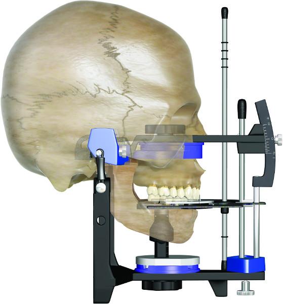 Kiefergelenkbehandlung anhand der Ergebnisse aus dem Kausimulator (Artikulator)