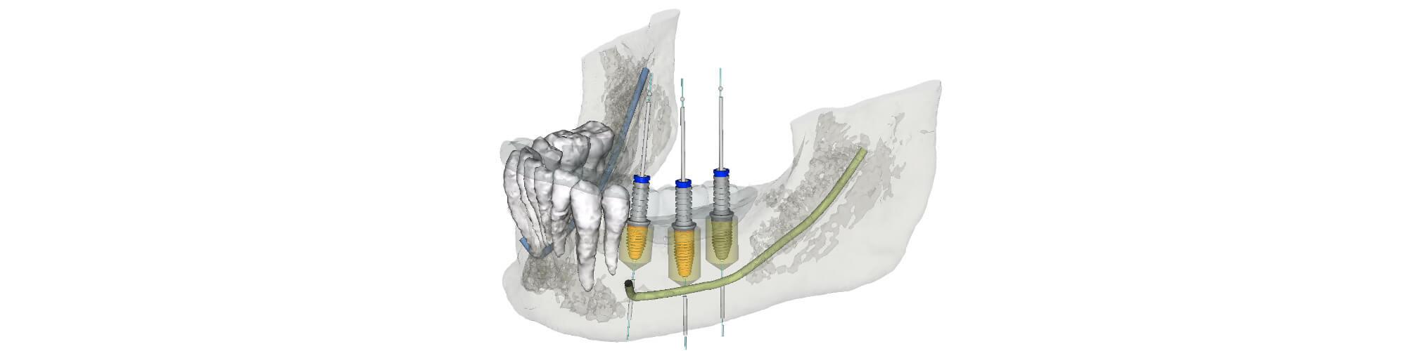 3D Implantatplanung in München