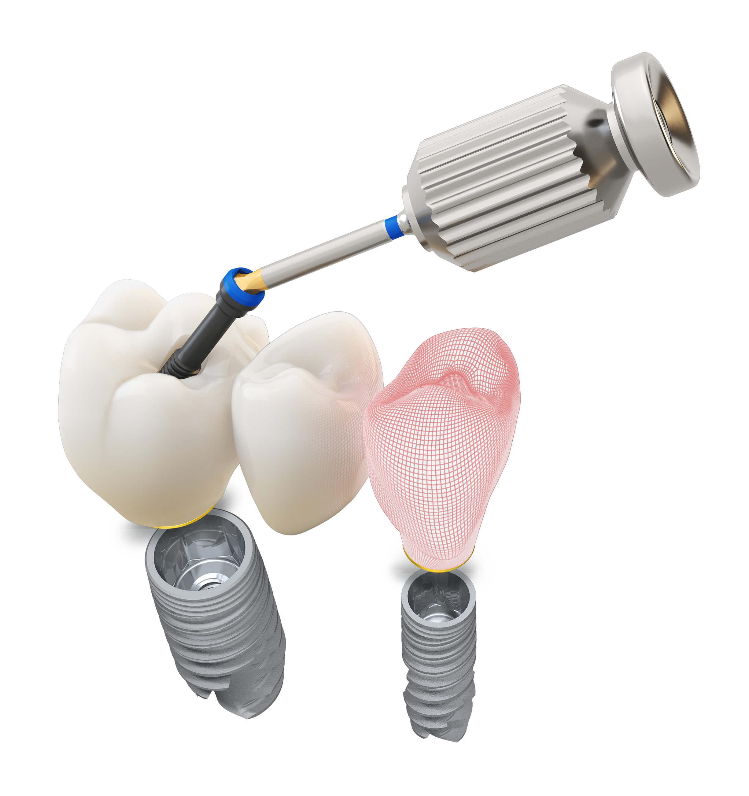 Passgenauer Zahnersatz für Zahnimplantate nach digitaler Abformung