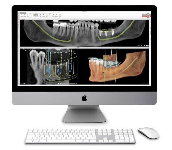 Digitale Prozesse bieten große Vorteile in der Implantologie: Detailreiche DVT-Aufnahmen erlauben die präzise und sichere 3D-Planung von Implantaten am Computer