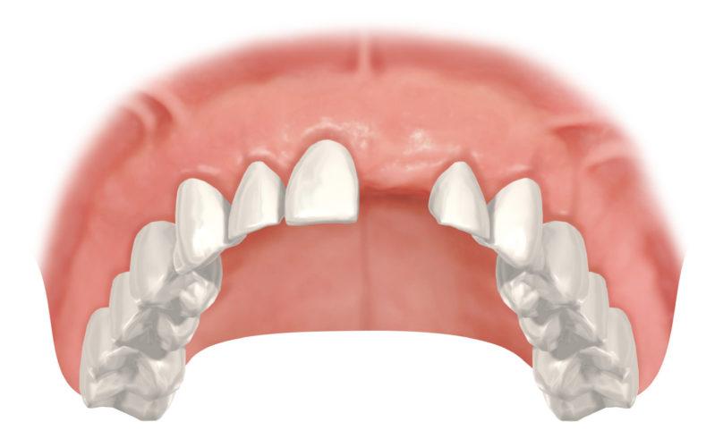 Vorteil beim Verschluss einer Einzelzahnlücke: Bei einem Implantat bleiben die Nachbarzähne unversehrt im Gegensatz zur Versorgung mit einer Brücke