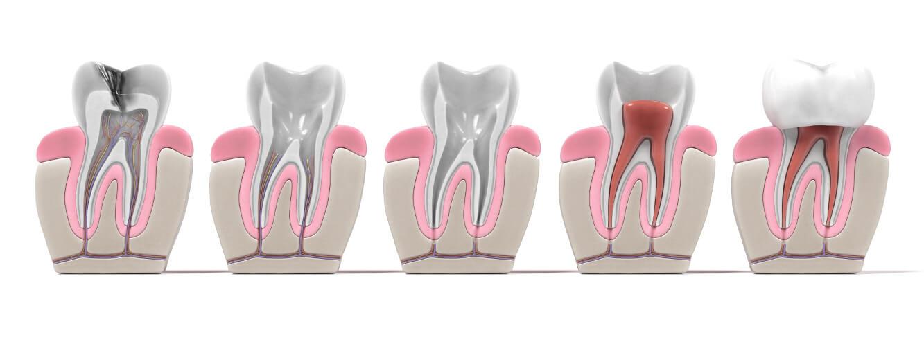 Endodontie in München bei MunichDent