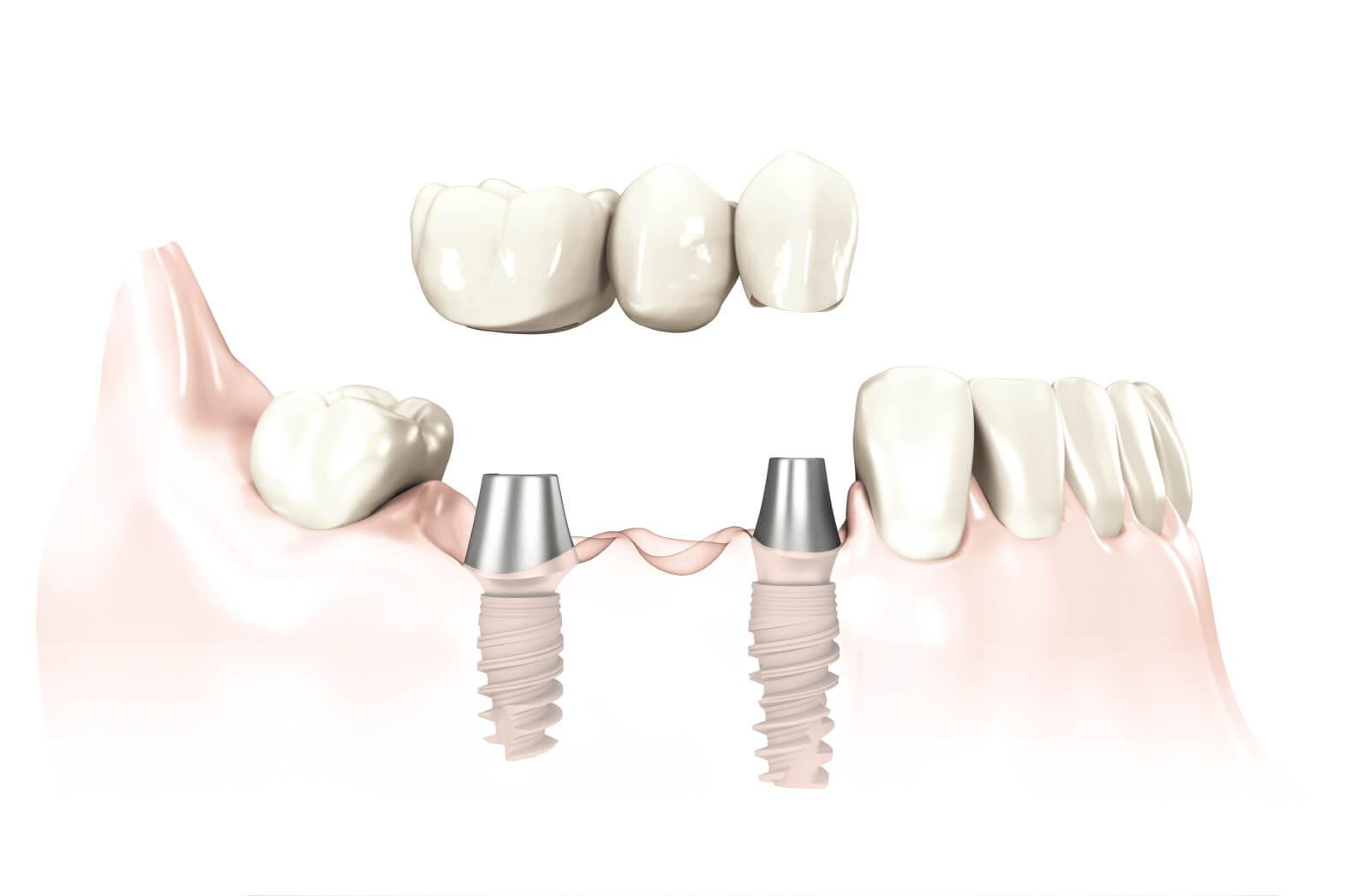 Keramikkronen für festsitzenden Zahnersatz auf Implantaten