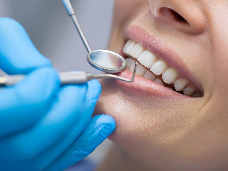 Zahnfüllungen stellen Funktion und Ästhetik der Zähne wieder her