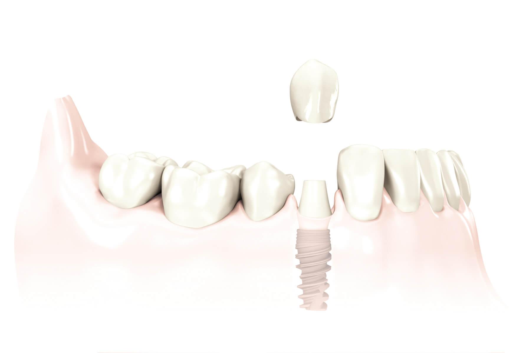 Ein Implantat mit Aufbau und eine Zahnkrone ersetzen einen verloren gegangenen Zahn