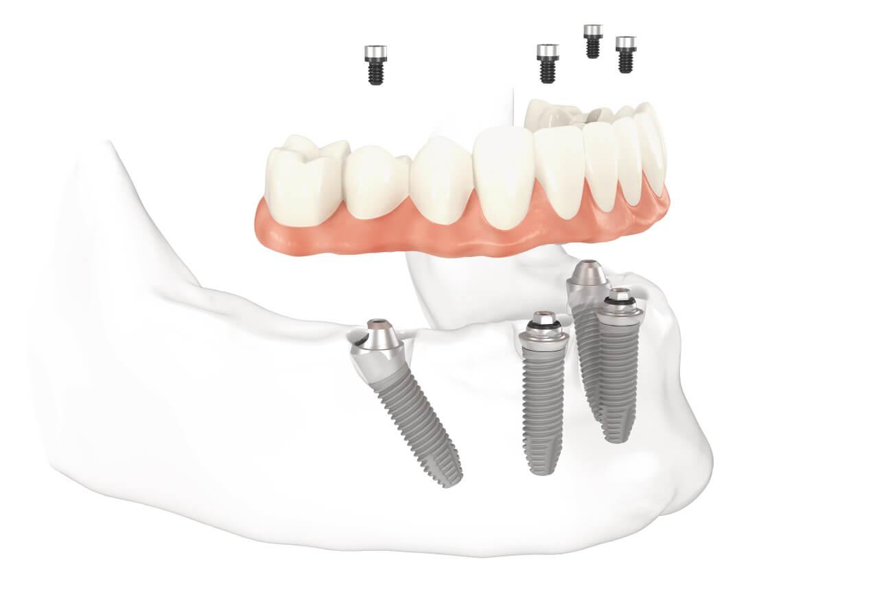 Vier Implantate tragen eine Zahnprothese und bieten so den Zahnersatz für einen komplett zahnlosen Kiefer