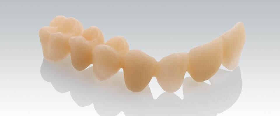Langzeitprovisorien dienen der vorübergehenden Versorgung mit Zahnersatz
