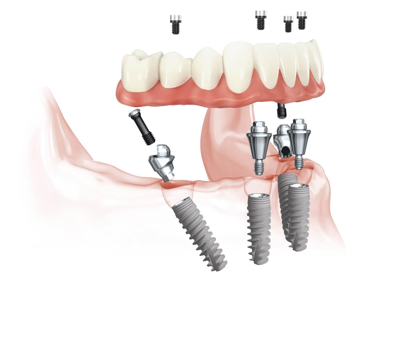 Konzept zur Sofortversorgung mit Zahnimplantaten beim zahnlosen Kiefer: all-on-4™ Sofortimplantate mit fester Zahnbrücke