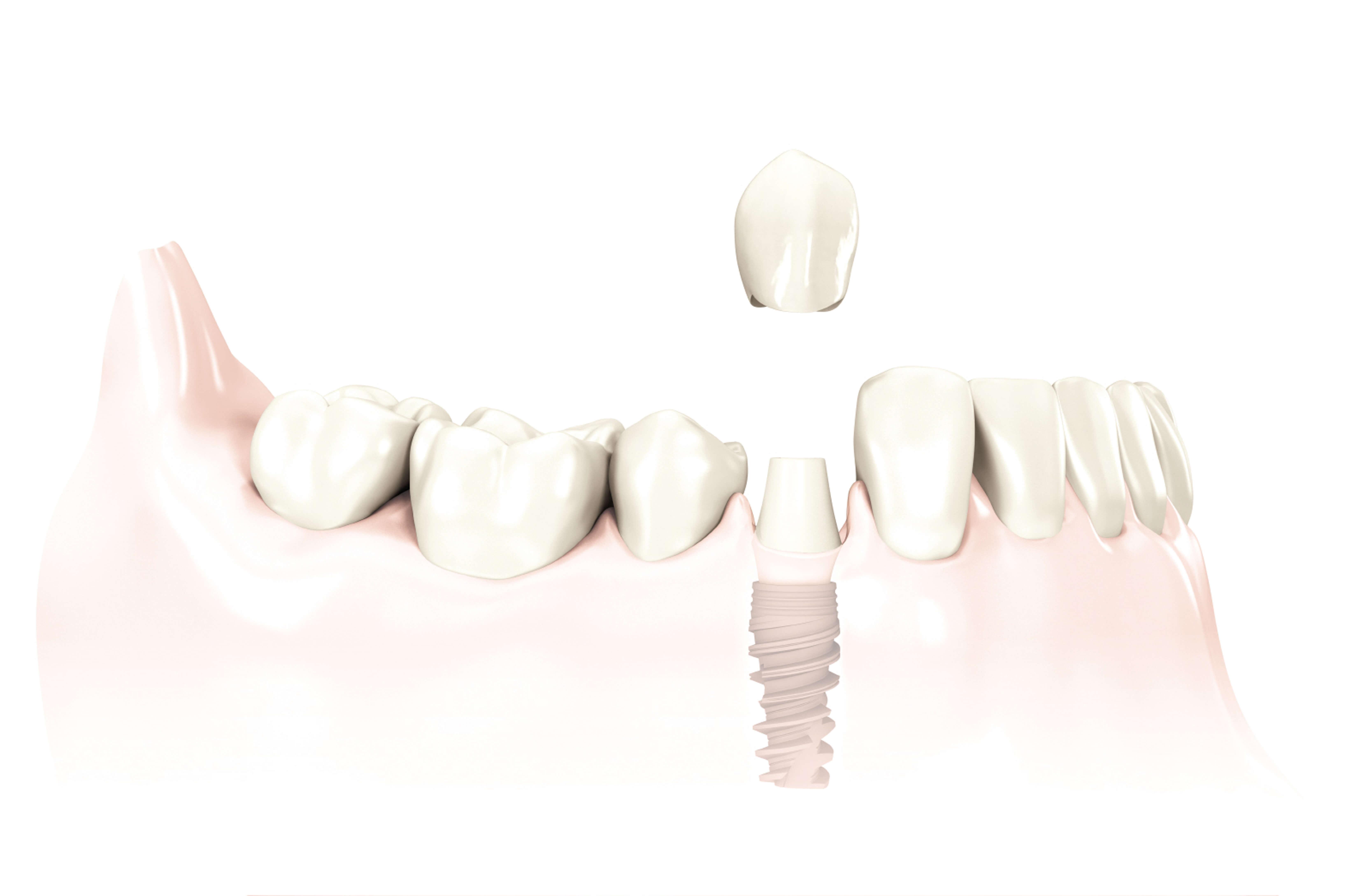 Biokompatibler Zahnersatz auch für das Zahnimplantat