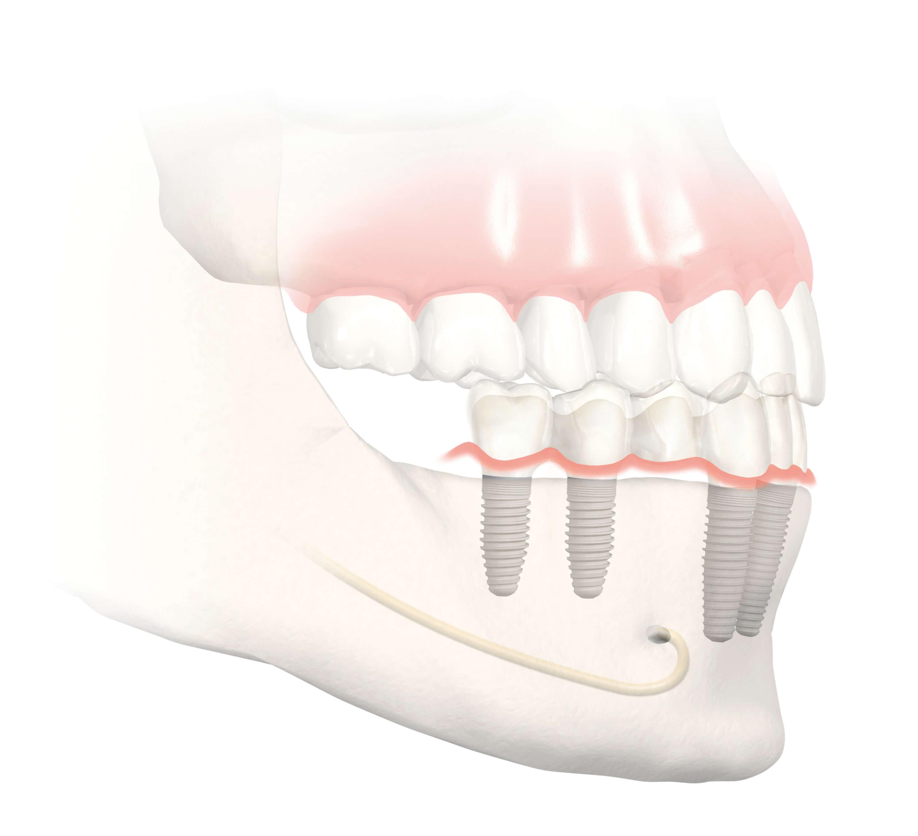 Kurze Zahnimplantate im Unterkiefer: Gute Lösung bei Knochenschwund