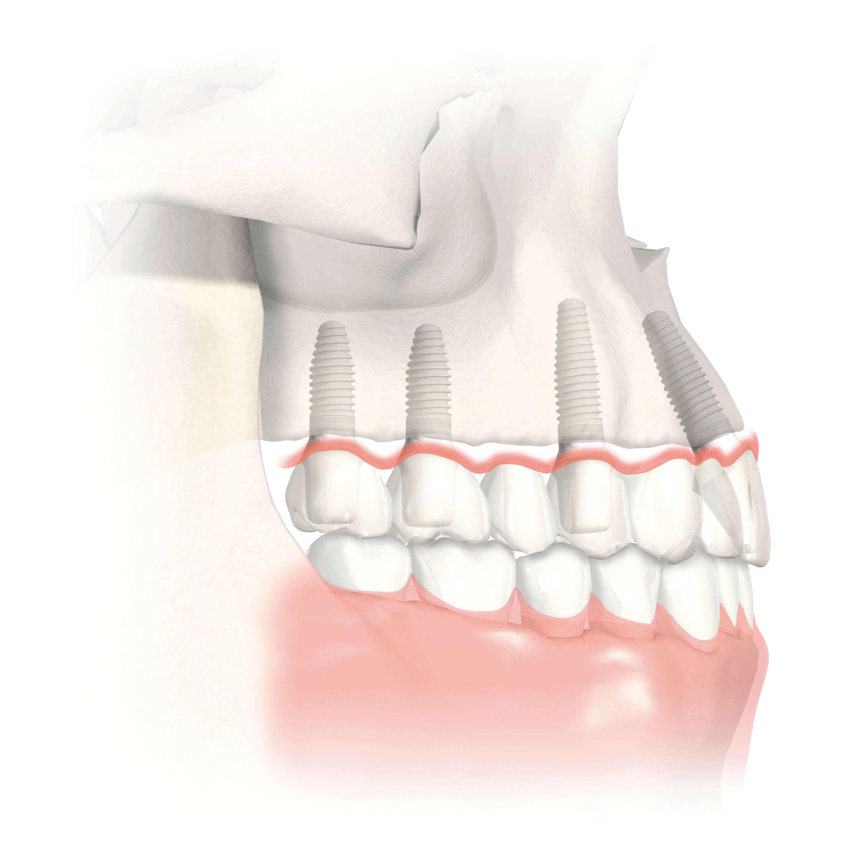 Knochenaufbau im Oberkiefer mit Sinuslift für festen Halt von Zahnimplantaten