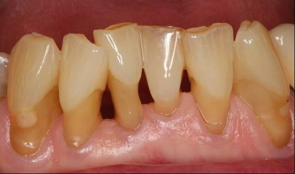 Bei chronischer Parodontitis ist ein gezielter Behandlungsplan wichtig