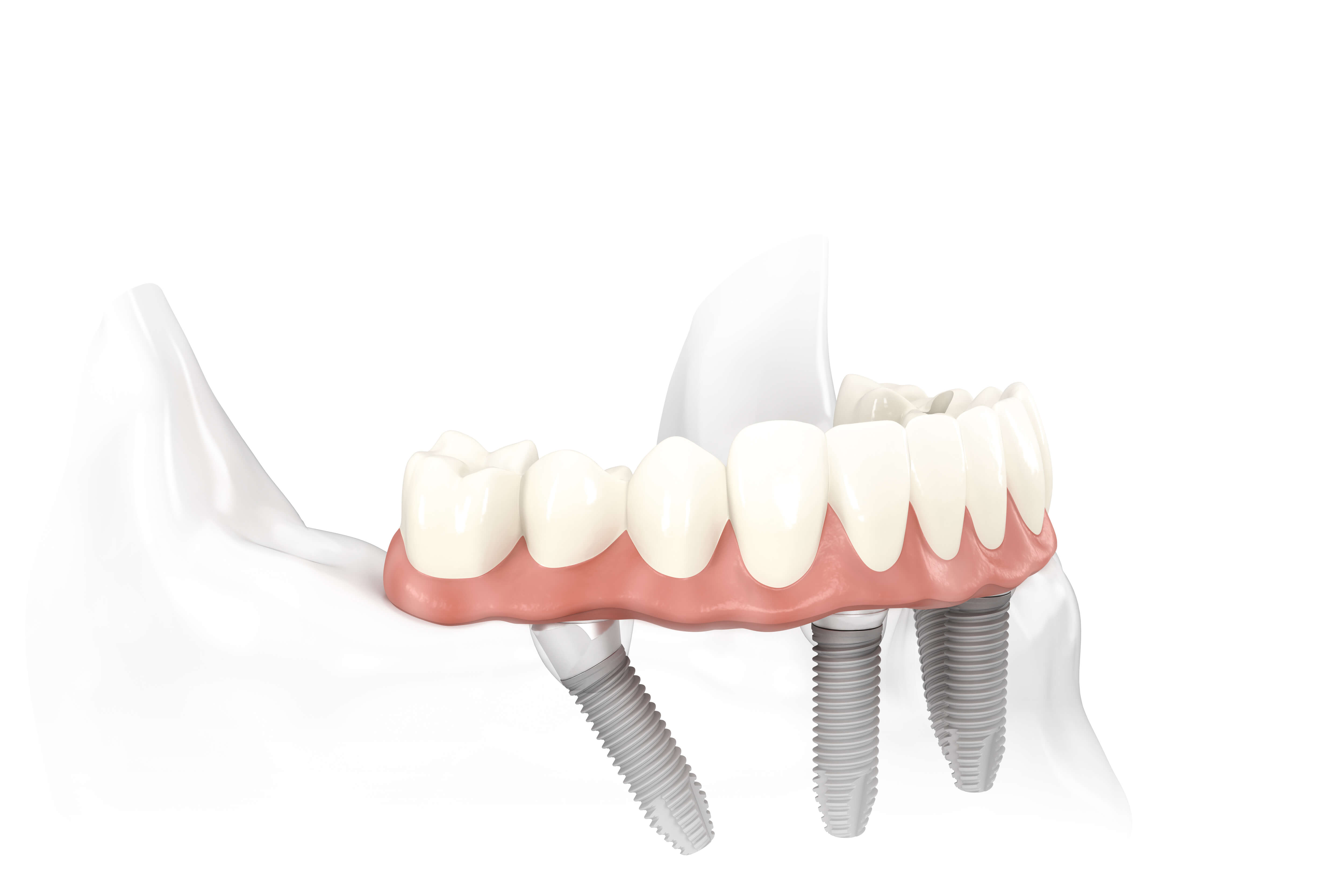 Zahnchirurgie - Minimalinvasiv bei MunichDent