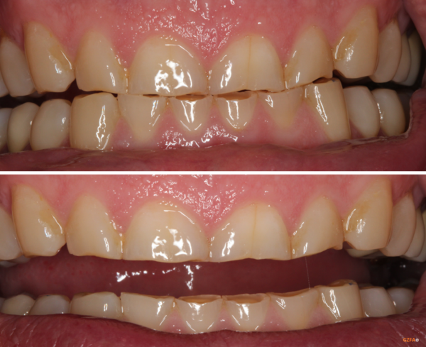 Abrasionsgebiss mit stark verkürzten, abgeschliffenen Zähnen