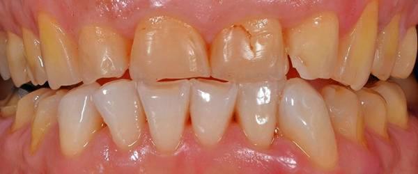 Fehlkontakte der Zähne durch Verlust der natürlichen Zahnformen und Zahnlängen