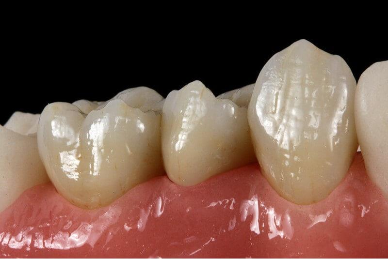 Zahnersatz sollte sich an der Natur orientieren - funktionell und ästhetisch