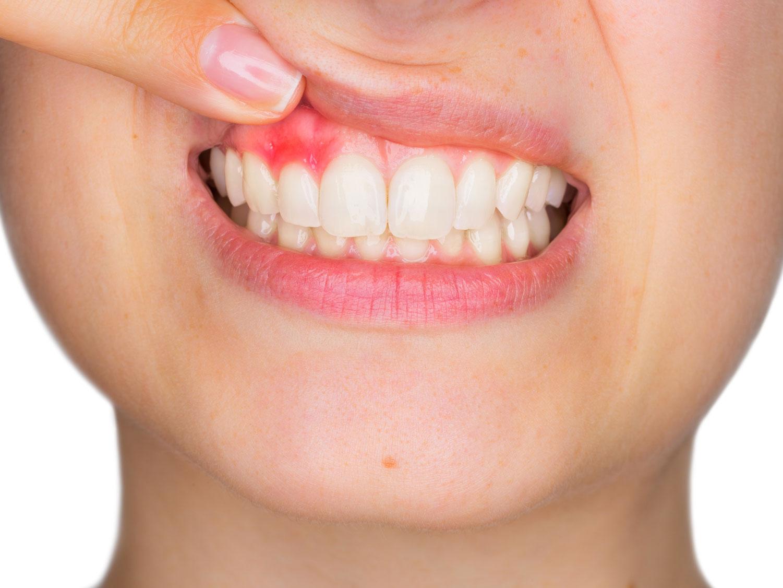 Eine Zahnfleischentzündung kann auf eine Entzündung am Zahnimplantat hinweisen