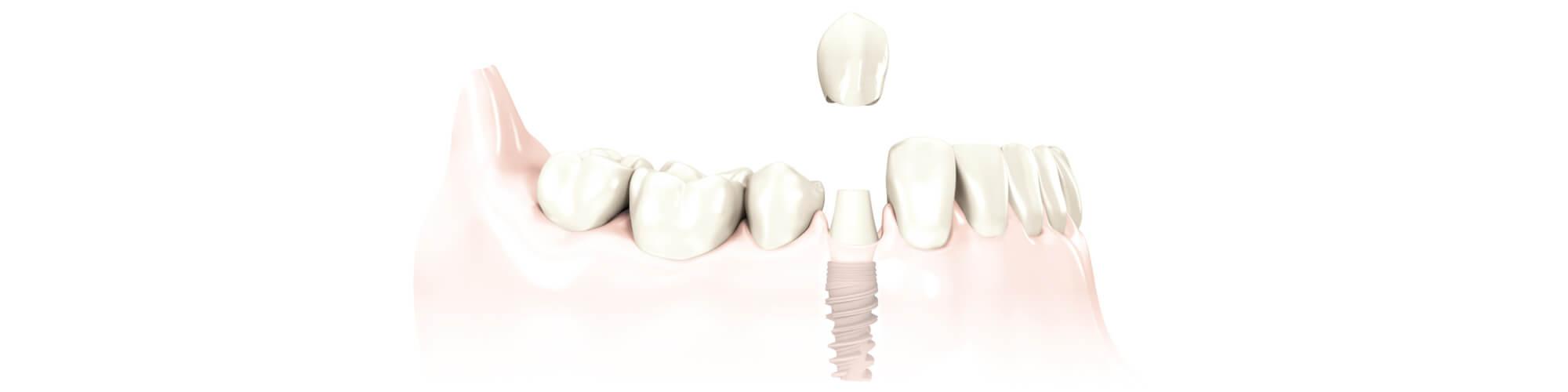 Zahnimplantate München MunichDent