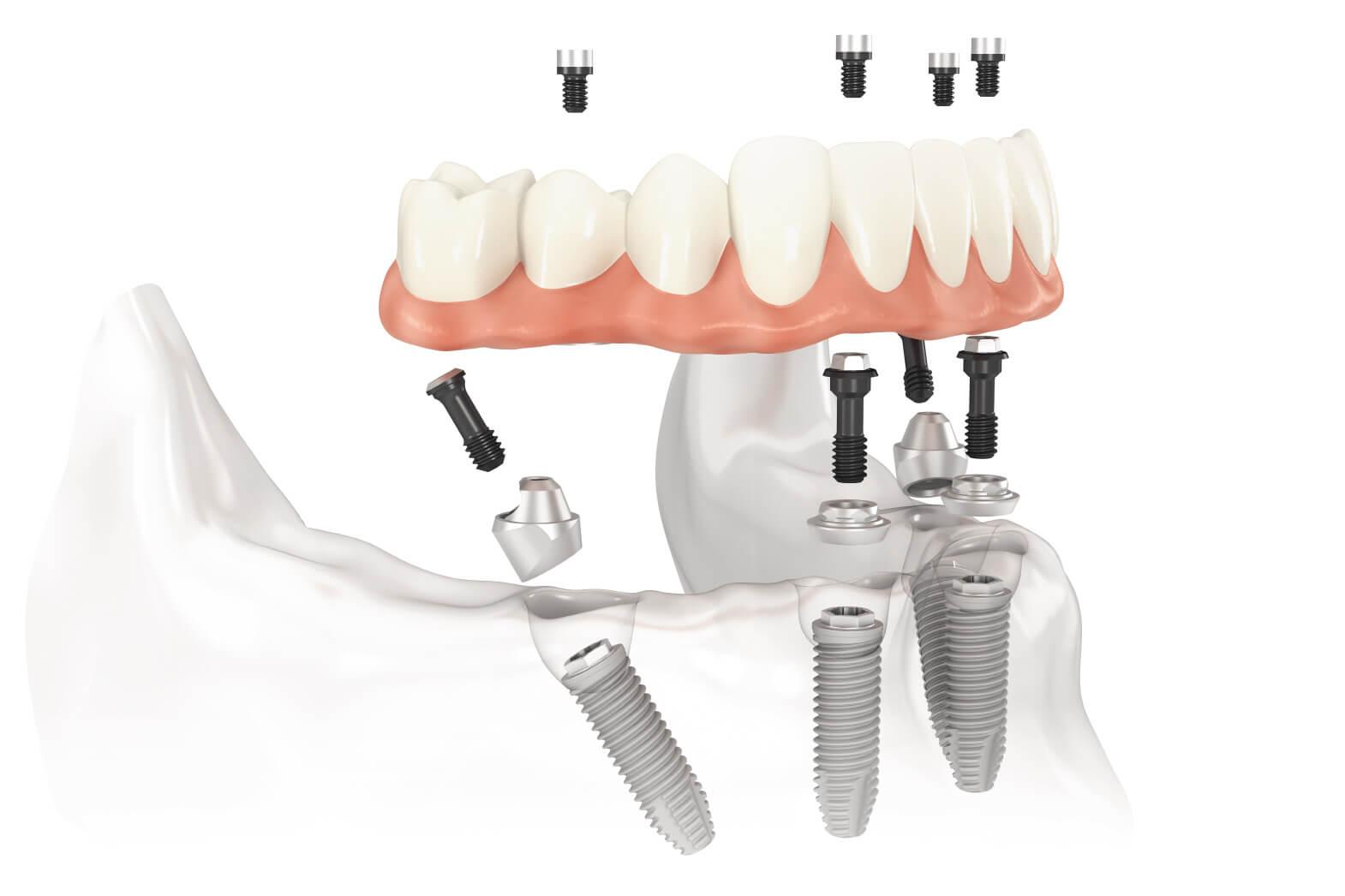 Eine feste Zahnprothese kann auch auf Implantaten befestigt werden