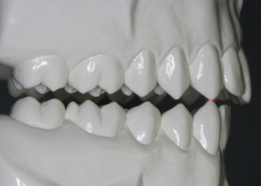 Wiederherstellung der Kaufunktion durch biomechanisch gestaltete Formen und Kauflächen der Zähne