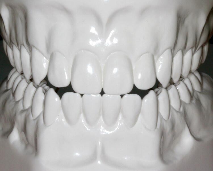 Funktionell-ästhetische Rekonstruktion nach Verlust von mehreren Millimetern Zahnhartsubstanz durch Abrasion