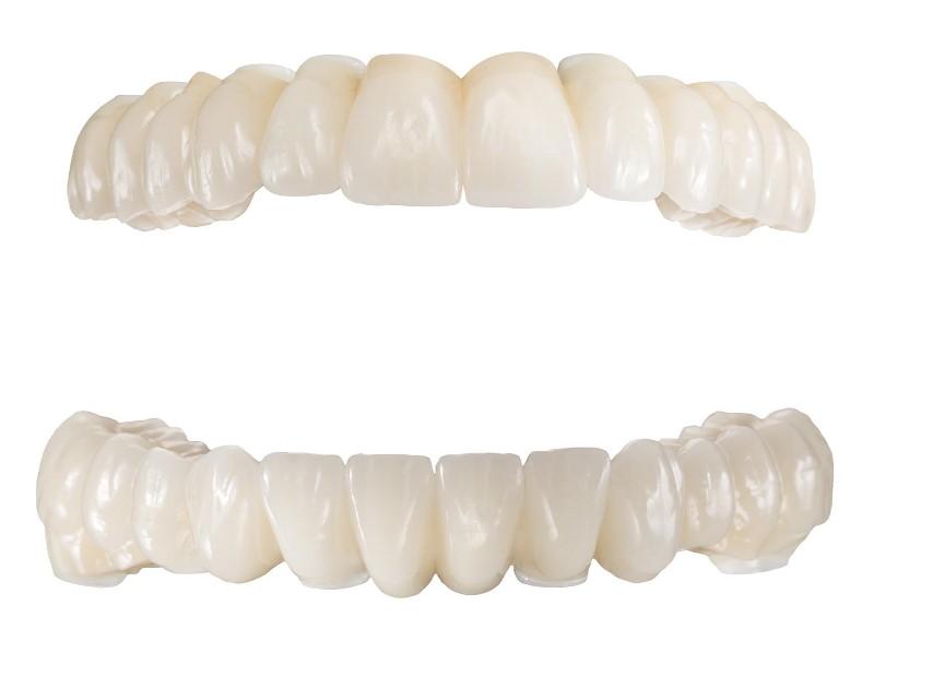 Ästhetische Zahnreihen für Ober- und Unterkiefer nach erfolgreichem Sanierungskonzept