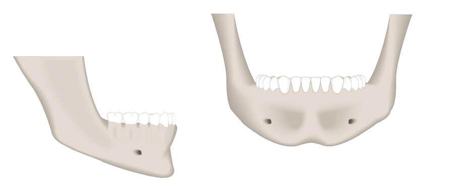 Gesunder Kieferknochen mit gutem Knochenangebot