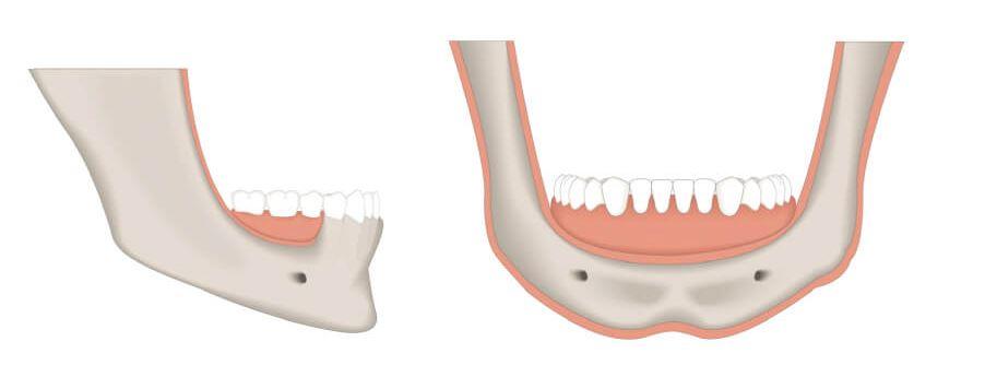 Verlust von Knochensubstanz (rot), die vor einer Zahnimplantation aufgebaut werden muss