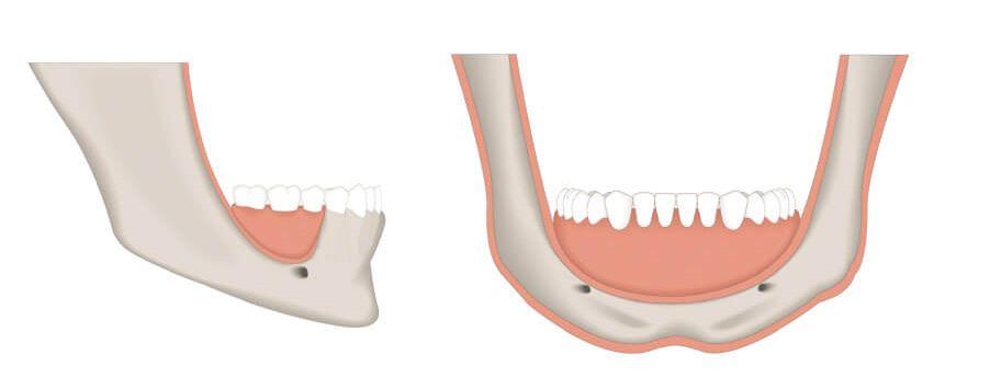 massiver Knochenschwund (rot), ein Knochenaufbau wird nötig