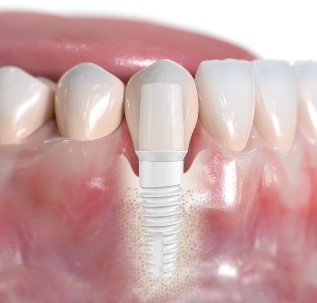 Keramikimplantate in München - Weiße Zahnimplantate aus Zirkonoxid: Metallfrei, biokompatibel und stabil.